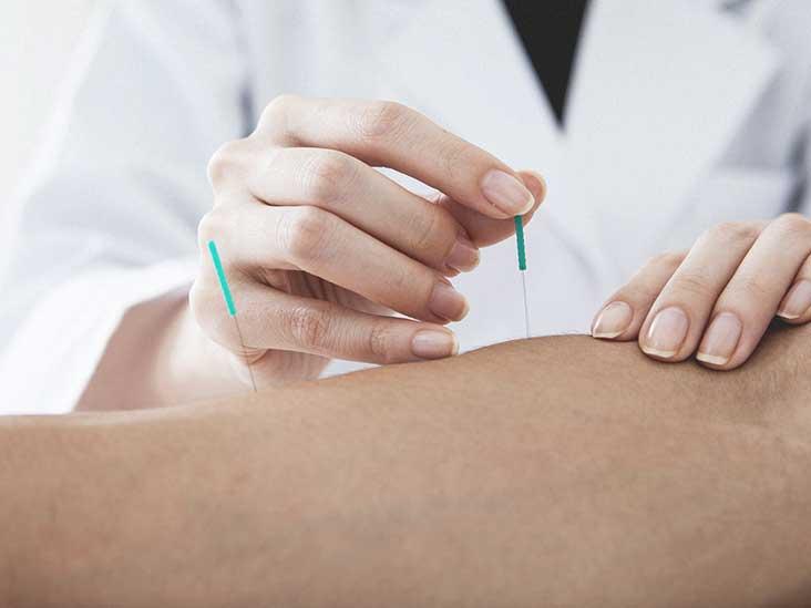 Acupuncture Dublin